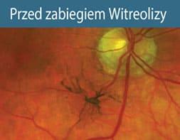 przed zabiegiem witreolizy